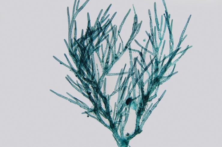 Водоросль кладофора (Cladophora sp.) под микроскопом